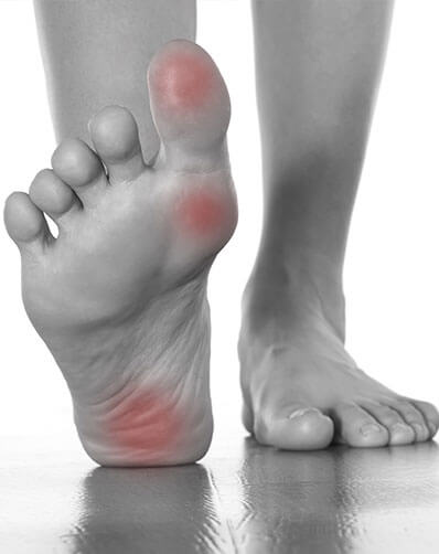 Physiotherapy and plantar fasciitis